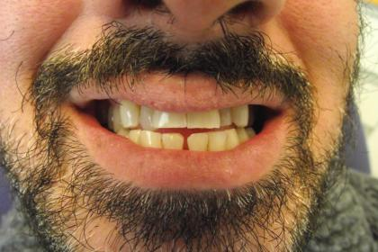 Full mouth zirconium - before