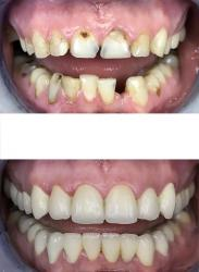 Before and after - amazing cosmetic dentistry